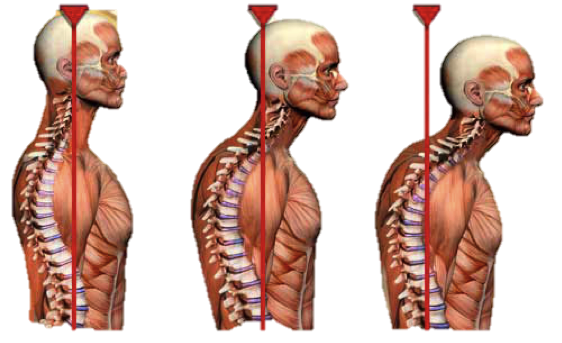 Forward Head Posture - A Pain in the Neck - Part 1
